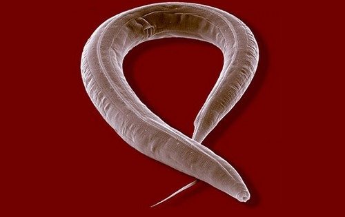 Le ver Caenorhabditis Elegans - © J. Berger/Max Planck Institute for Developmental Biology