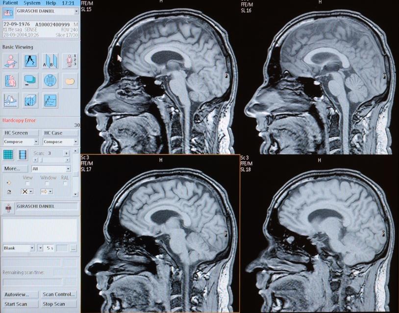 Images obtenues en imagerie par résonance magnétique (IRM) montrant différents niveaux de coupes du cerveau © Jérôme Chatin / CNRS Photothèque
